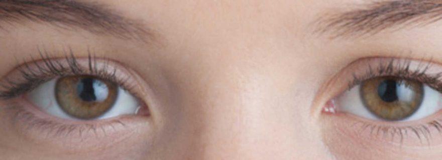 How to Treat Under-Eye, Dark Circles, and Sunken Eyes ...